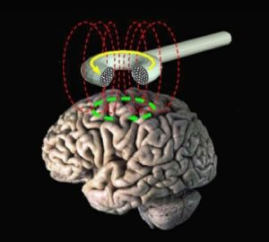 bem-pemf-Transcranial_magnetic_stimulation